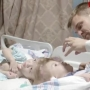 Separated twins recovering after risky surgery