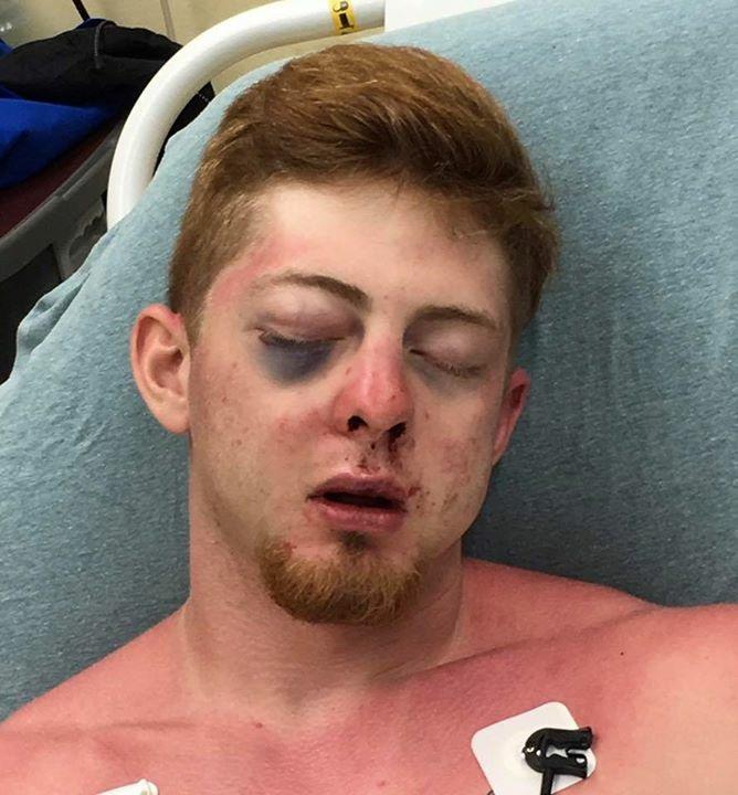 Noah Frillou suffered permanent injuries to his face after police say he was assaulted last week by four men, three of which have recently played for the football state champion West Orange-Stark Mustangs.