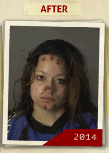 This 2014 photo was taken of the same woman who reportedly had a 'possession of a controlled substance ' charge. (Photo, info from rehabs.com/)