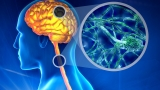 Scientists find possible cause for multiple sclerosis
