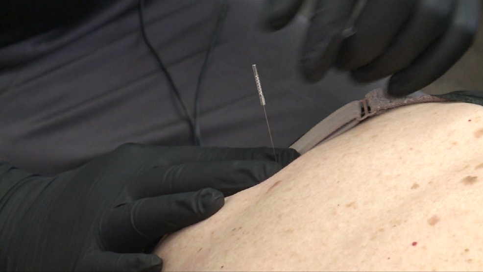 Needles Help Patients Find Relief from Pain